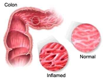 Tratamiento para reflujo gastroesofagico cronico
