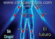 Tratamientos Regenerativos Artrosis