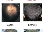 NO MASL CALVICIE EN TAN SOLO  30 SEGUNDOS !! Boom Boom Hair