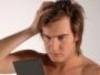 Alopecia? o perdida del cabello?