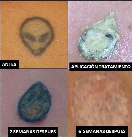Eliminacion de tatuajes sin laser - curso