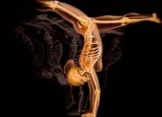 Centro de aplicación ácido zoledronico en osteoporosis. bogotá - colombia