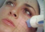 Limpieza facial (lifting de renovacion)paga 1 sesion y recibe 3