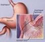 Reflujo Gastroesofágico, Gastritis, Gastralgia