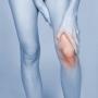 Biotecnologias de avanzada celulares ricas en factores de crecimiento para el dolor articular