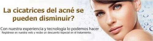 Tratamiento de acne unidad laser y piel