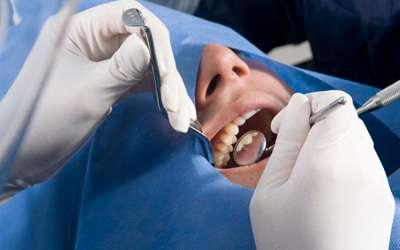 Cirugia de cordales en bogota, odontologos universidad nacional