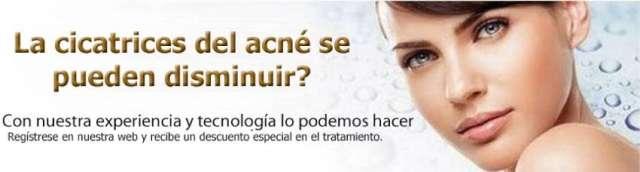 Tratamientos del acne bogota unidad laser y piel