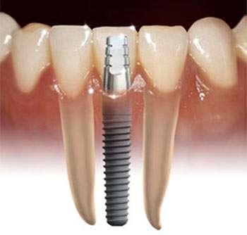 Fotos de Implantes dentales en bogota su salud oral integral quiroga 2