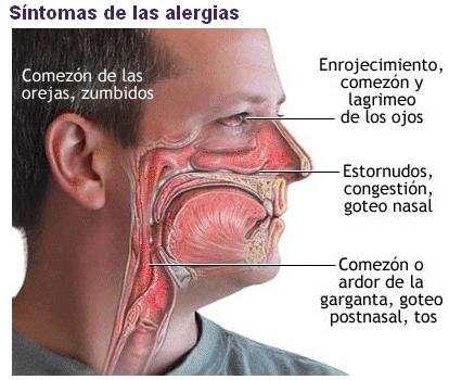 Asma, bronquitis, alergias, rinitis