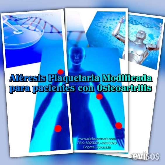 Aferesis plaquetaria modificada para pacientes con artrosis