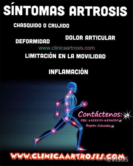 Sintomas de la artrosis- clinica colombia