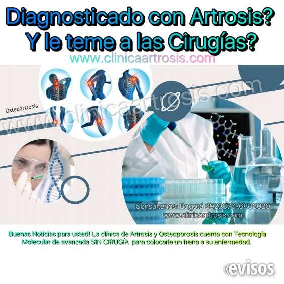 Osteoartrosis especialistas colombia