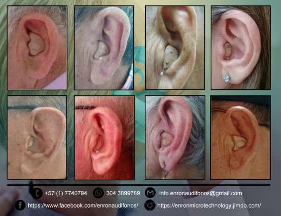 Fotos de Enron soluciones auditivas, audifonos para sordos. 2